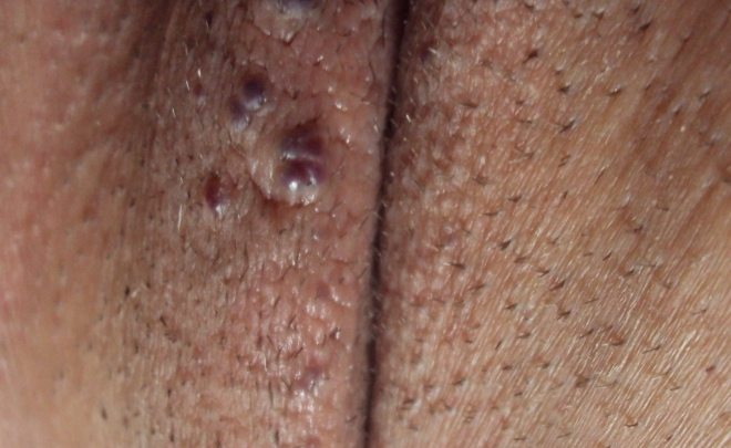 Сифилис у женщин фото