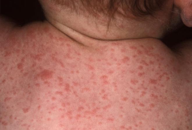 Сыпь при сифилисе у ребенка