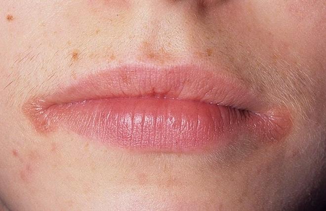 Сифилисная сыпь на лице