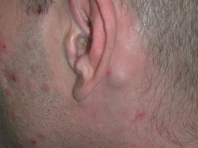 Проявления сифилиса на лице