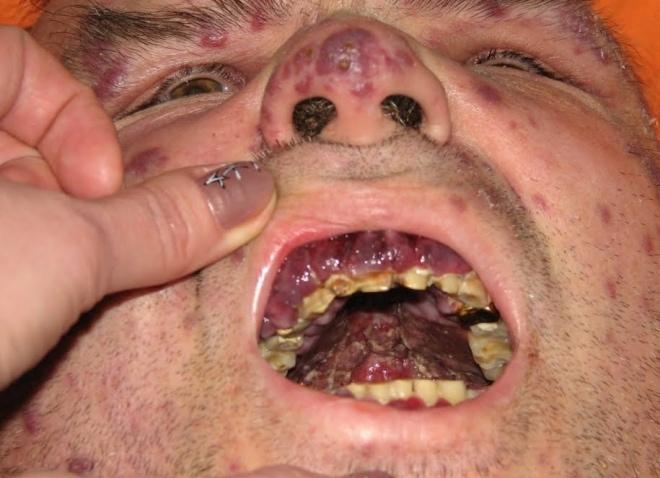 Сифилис симптомы фото