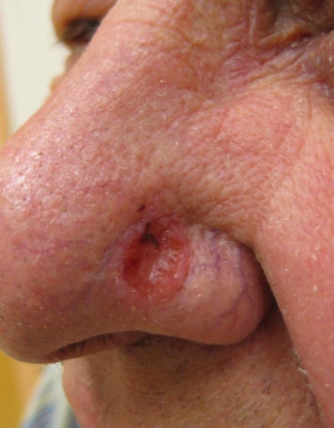 Нос с сифилитической язвой