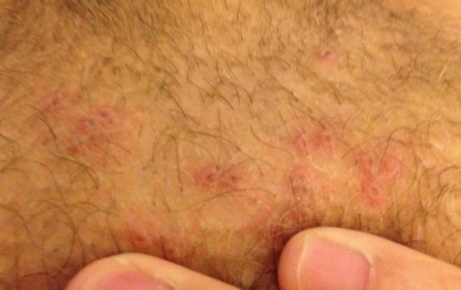 Язвы при сифилисе на половых органах женщины