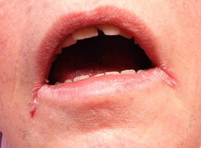 """Сифилис через поцелуй может проявляться """"заедами"""""""