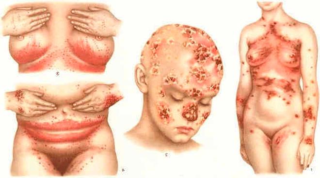 Фото женщины, болеющей хламидиозом