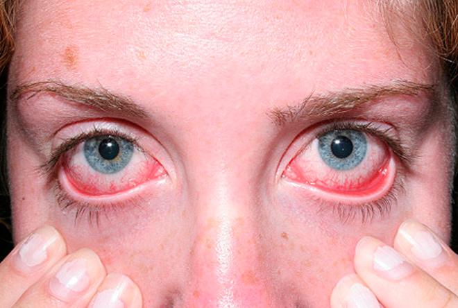 Фото красных глаз при хламидиозе у мужчин