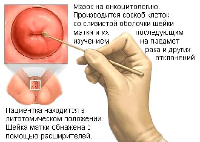 Взятие мазка у женщины для диагностики хламидиоза, фото