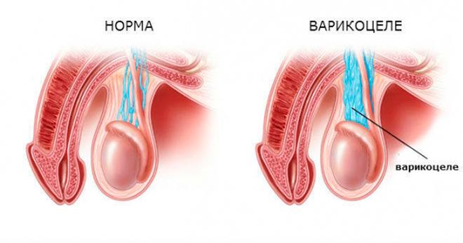Фото осложнений при хламидиозе у мужчин