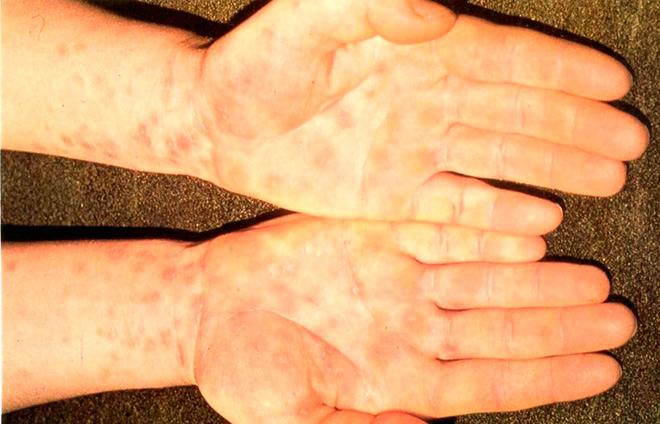 Фотографии сыпи на руках при хламидиозе