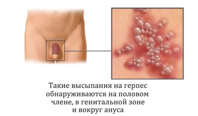 генитальный герпес у мужчин картинки