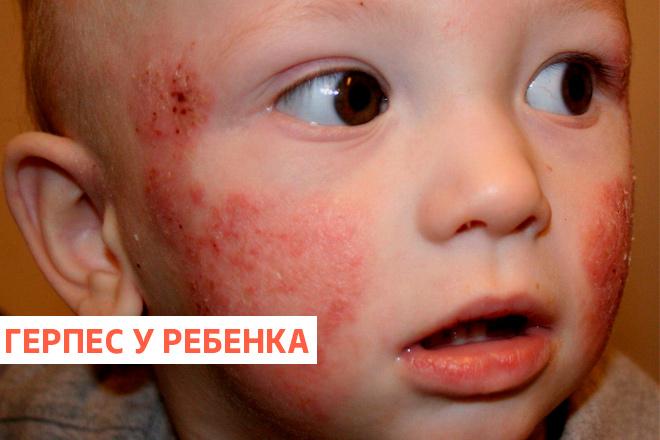 герпес на лице у ребенка фото