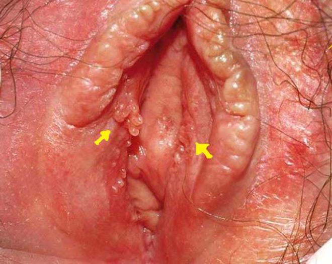 герпес на половых губах у женщин фото