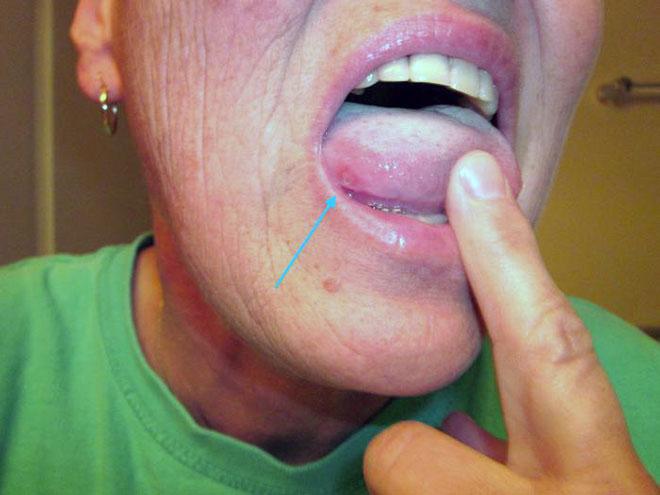 герпес под языком фото лечение