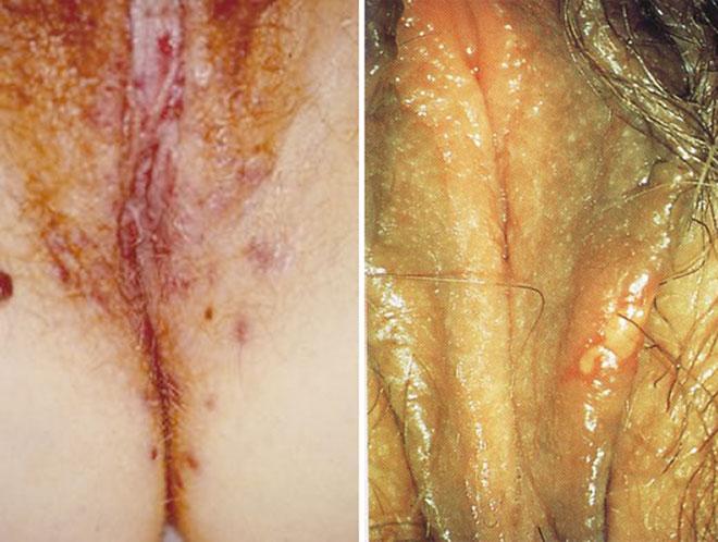 герпес половых органов у женщин фото