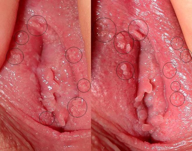 герпес в интимной зоне у женщин симптомы и фото лечение