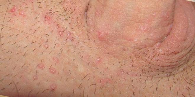 герпес в паху у мужчин симптомы фото
