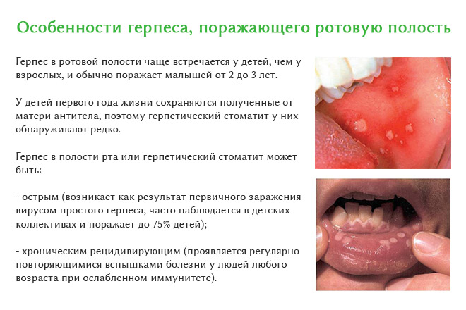 Герпес симптомы во рту фото