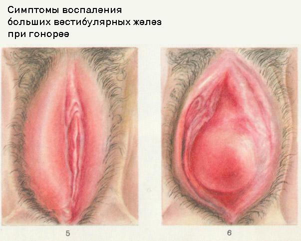 Симптомы хронической гонореи у женщин фото