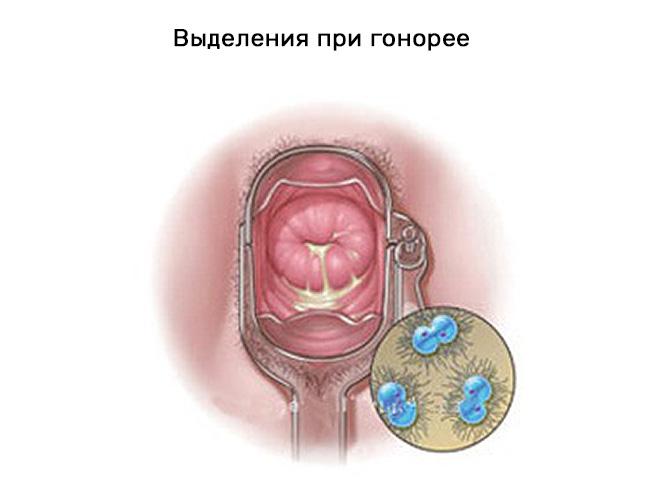 Гонорея у женщин симптомы выделения фото