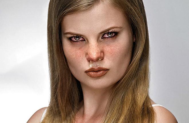 Гонорея симптомы у женщин первые признаки фото