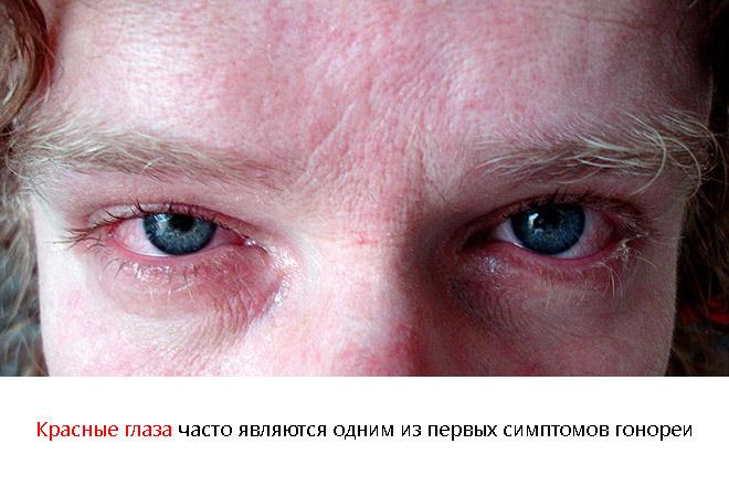 Гонорея симптомы у мужчин первые признаки фото