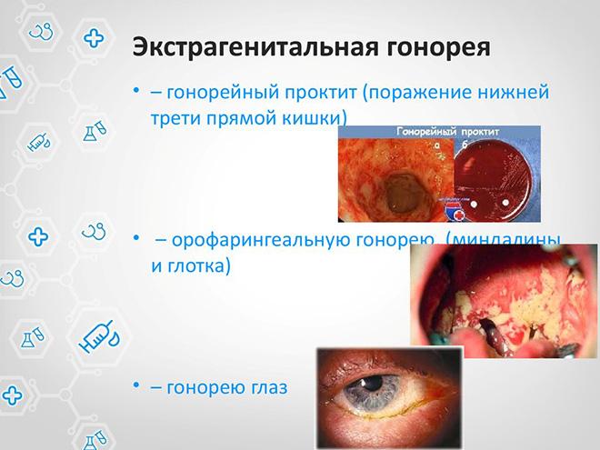 Как проявляется гонорея у мужчин симптомы фото