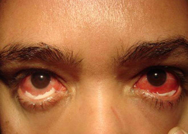 Гонорея глаза фото