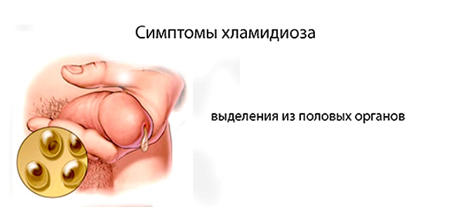 Хламидиоз у мужчин - фото симптомов и первых признаков болезни