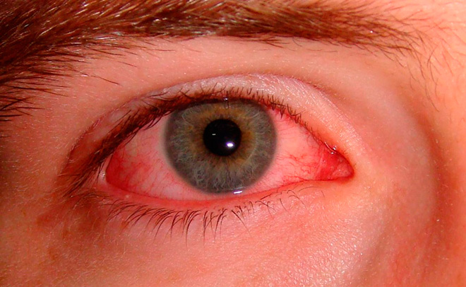 Фото глаз при хламидиозе