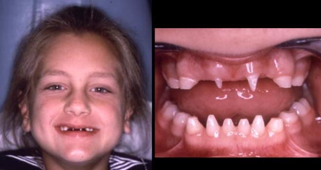 Развитие зубов при врожденном сифилисе