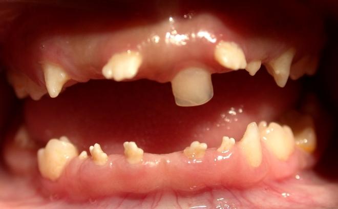 Форма зубов при врожденном сифилисе
